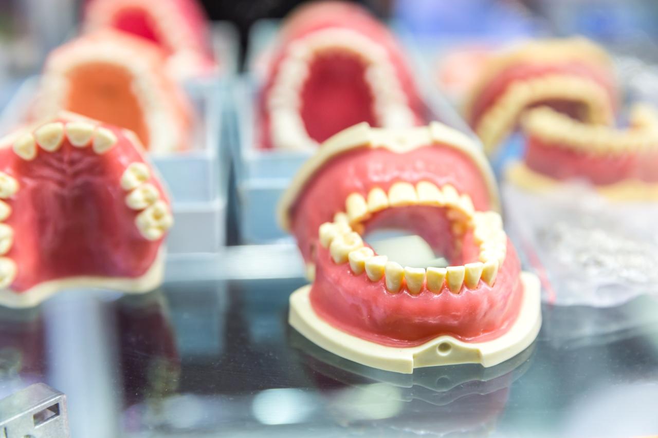 Conception de prothèse dentaire à Joliette - Centre Dentaire Guillemette Laroche à Joliette