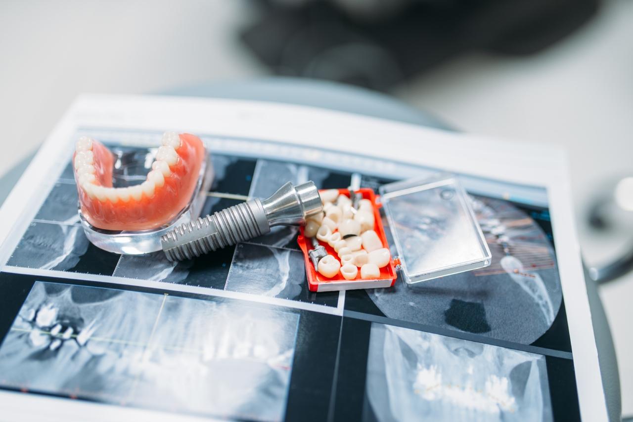 Service de prothèse dentaire amovible dans Lanaudière - Centre Dentaire Guillemette et Laroche à Joliette